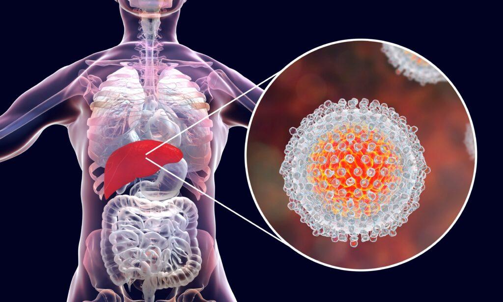 Cada 30 segundos muere  una persona por hepatitis